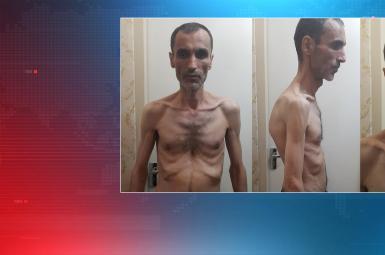 تصاویر منتشر شده از حمید بقایی، معاون سابق محمود احمدینژاد که برای مدت ۶ روز از زندان اوین مرخص شده بود او را بسیار لاغر و ضعیف نشان میدهد.