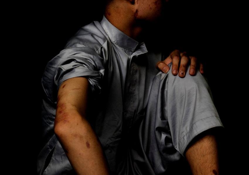 شکور ۱۴ ساله که از اثر انفجار بمبی در کابل زخم برداشته است.